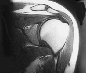 shoulder_MRI